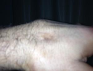 Vitor Belfort divulga mão lesionada e lamenta estar fora da próxima luta(Foto: Divulgação/Twitter)